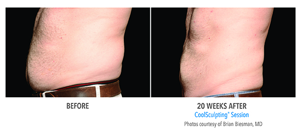 CoolSculpting leads to reduced stomach fat for this patient of BMI Surgery.