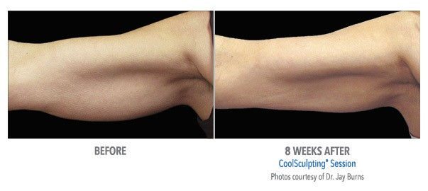A patient of Birmingham Minimally Invasive achieves reduced fat and more toned arms after 8 weeks of CoolSculpting sessions.