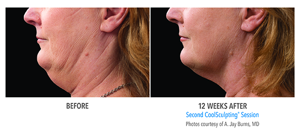 A patient of Birmingham Minimally Invasive Surgery shows her chin results from 12 weeks of CoolSculpting sessions.